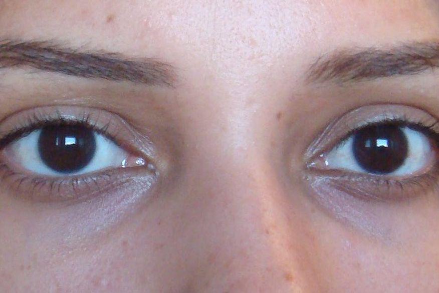 Resultado de imagem para Manchas escuras nos olhos